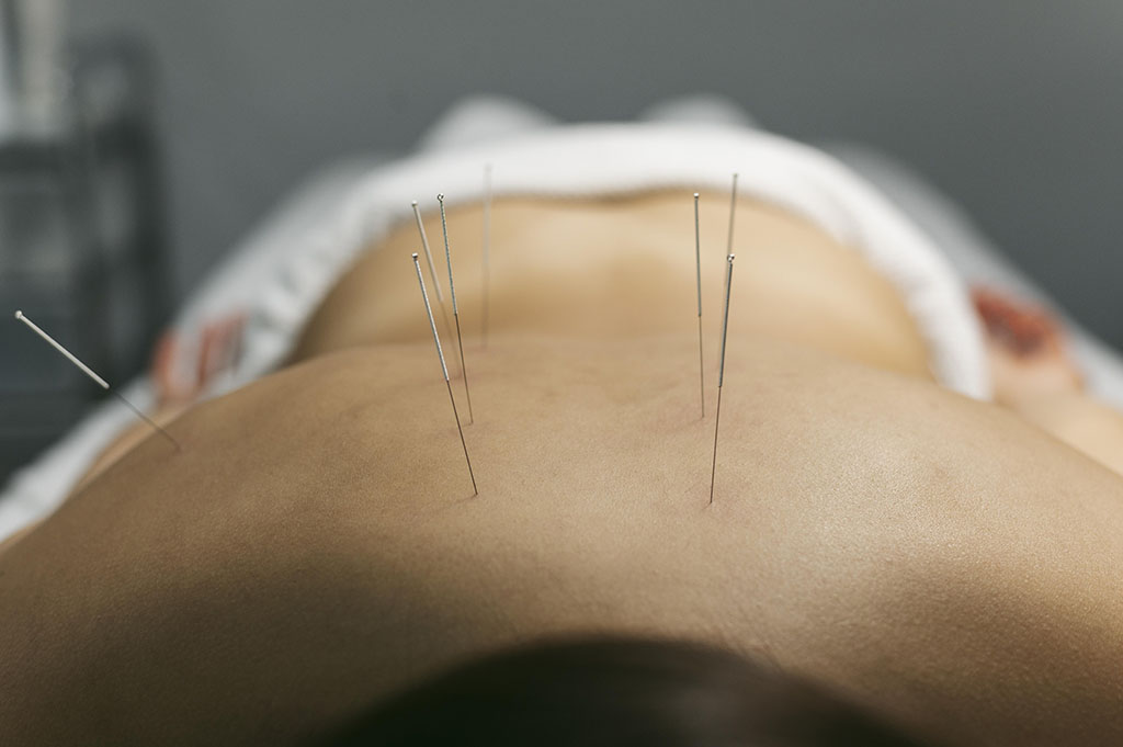 acupuncture-process-for-client