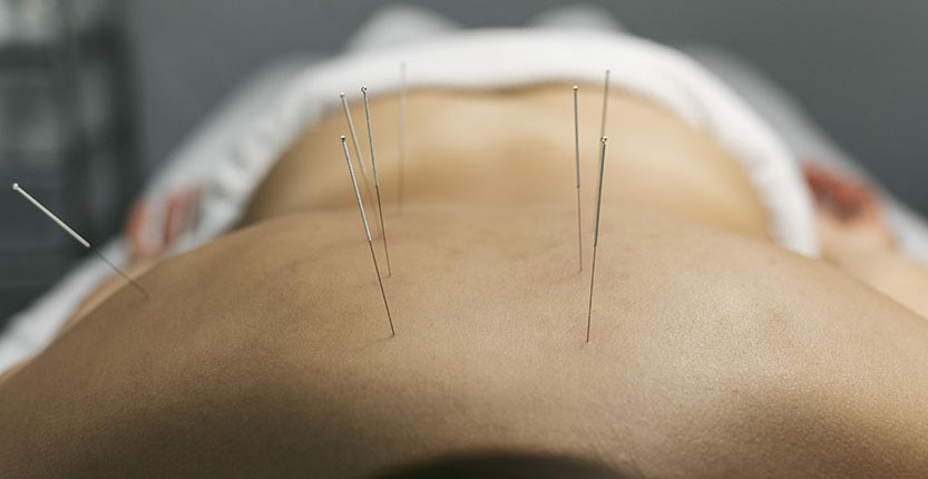 acupuncture-process-for-client1 (1)